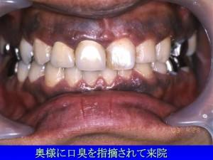 歯茎の色3