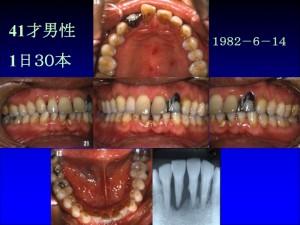 歯茎の色1