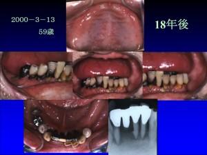 歯茎の色2