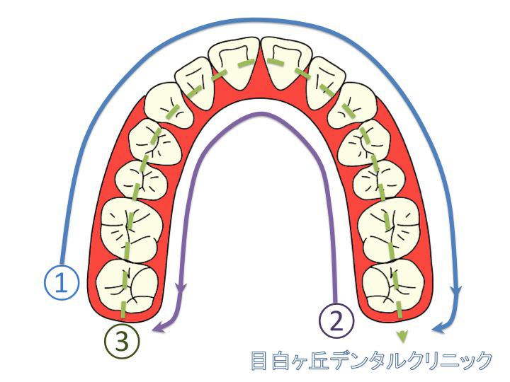 MDC Fig.6 磨き順
